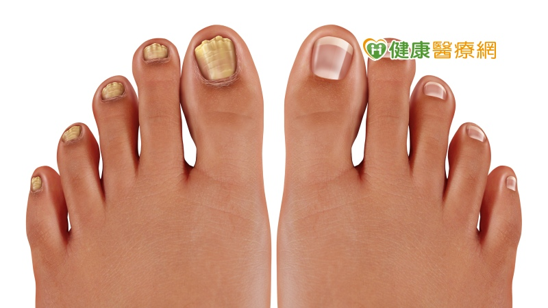 指甲變色就是灰指甲? 醫生解析怎麼治療
