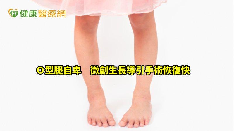 小妹妹O型腿自卑 專業醫師建議父母這樣做_肉毒桿菌