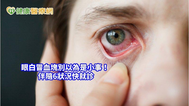 眼睛也會中風! 眼球內出血伴隨6狀況快就診_皮秒