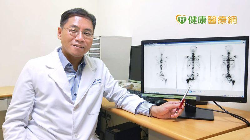 老翁腰痠背痛 檢查驚見晚期攝護腺癌_LPG