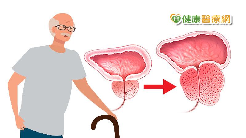 尿很久、難解尿、餘尿感 7項目自評有沒有「攝護腺肥大」_飄眉