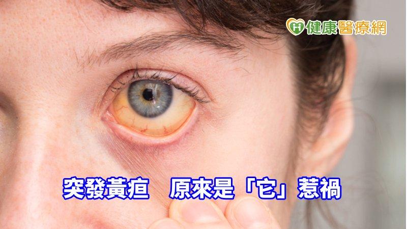 七旬婦人突發黃疸 原來是「它」惹禍_童顏針