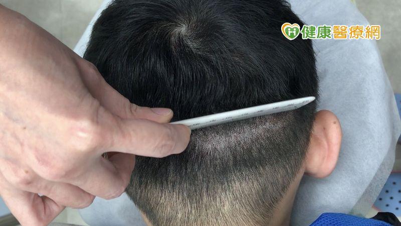 植髮一定要剃頭髮? 運用隱痕密技破除植髮迷思!_肉毒桿菌