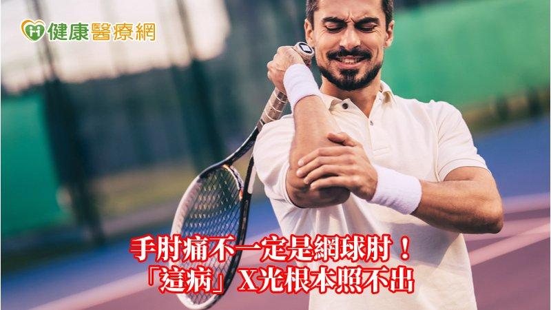 手肘痛不一定是網球肘! 「這病」X光根本照不出_聚左旋乳酸